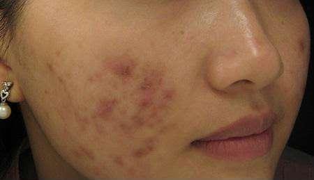 Thuốc Contractubex®có khả năng chữa lành các vết sẹo trên da từ sâu bên trong